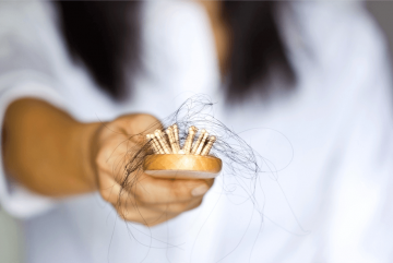 Thinning Hair and Hair Loss in Women